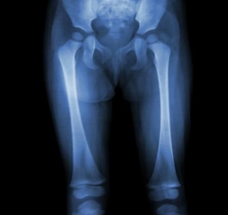 durere în articulațiile genunchilor la copii tratarea articulațiilor articulațiilor degetelor