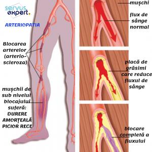 dureri articulare cu boli de sânge