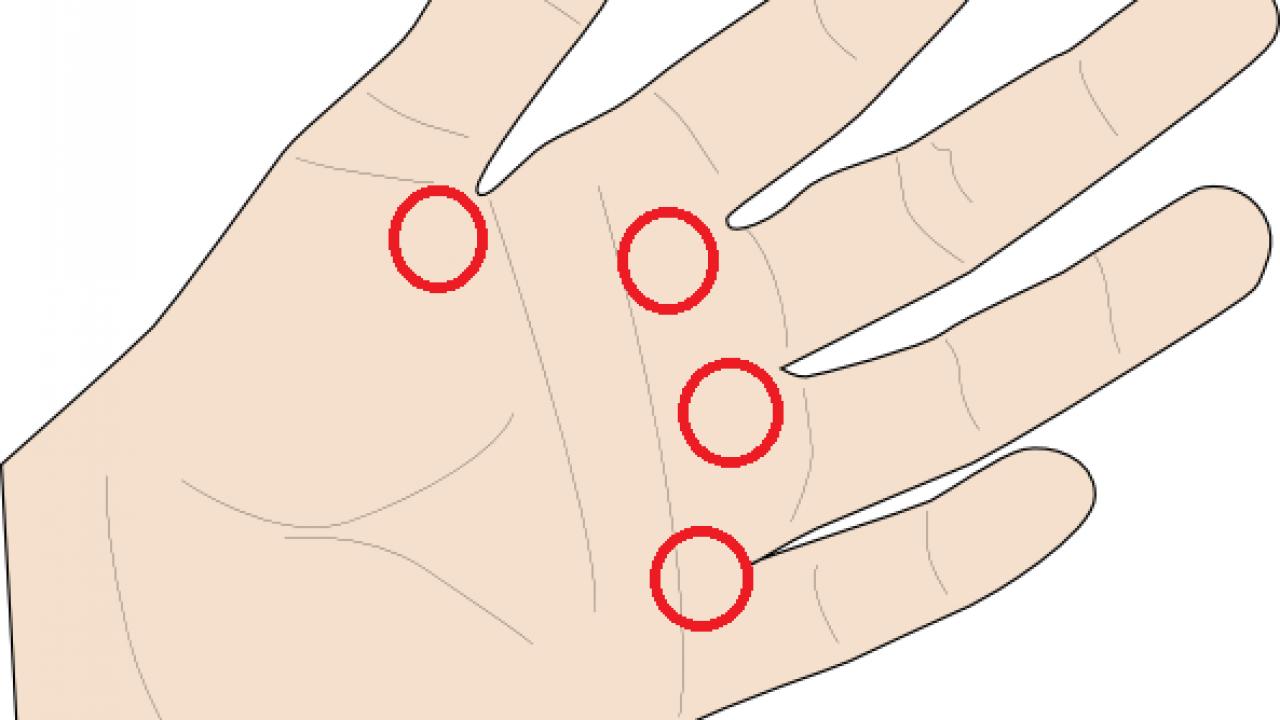 dureri articulare în degetul mijlociu)