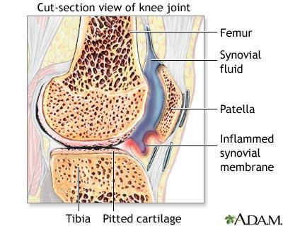 dureri de genunchi sinovită