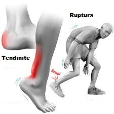 dureri de glezna spate