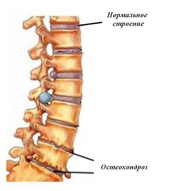 osteocondroza cervicală care unguent de tratat