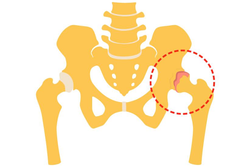 Pot simți simptomele articulațiilor șoldului?