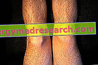 umflarea severă a genunchiului