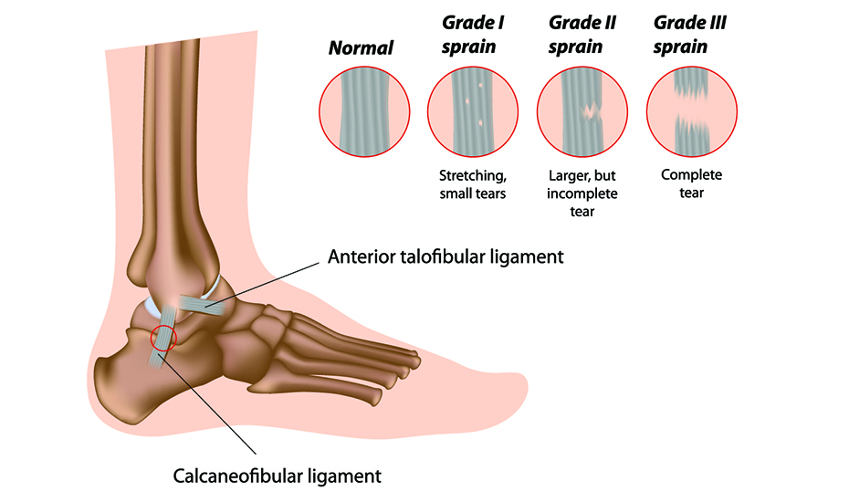 provocând dureri articulare durere în artrita degetelor îndoite