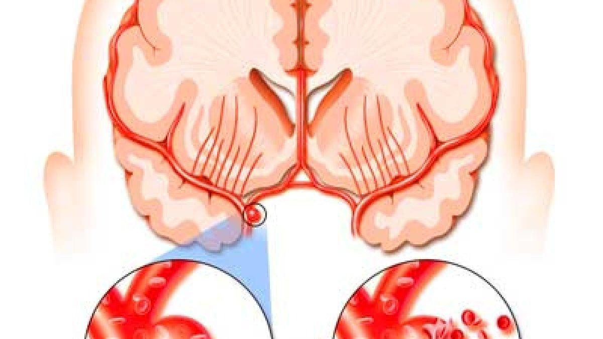 durere la gleznă după un accident vascular cerebral)