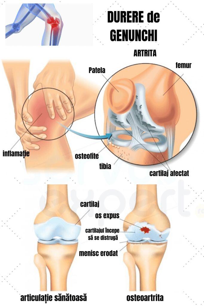 durere articulară de cânepă