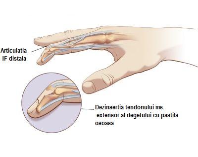 degetele de tratament articulare