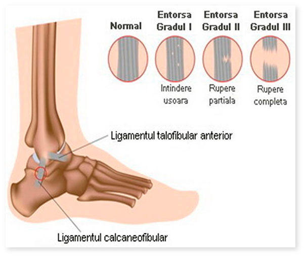 tratament articular unde dureri articulare severe artrita reumatoidă