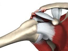artroza articulației acromioclaviculare drepte