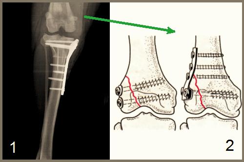 afectarea condilică a tratamentului articulației genunchiului)
