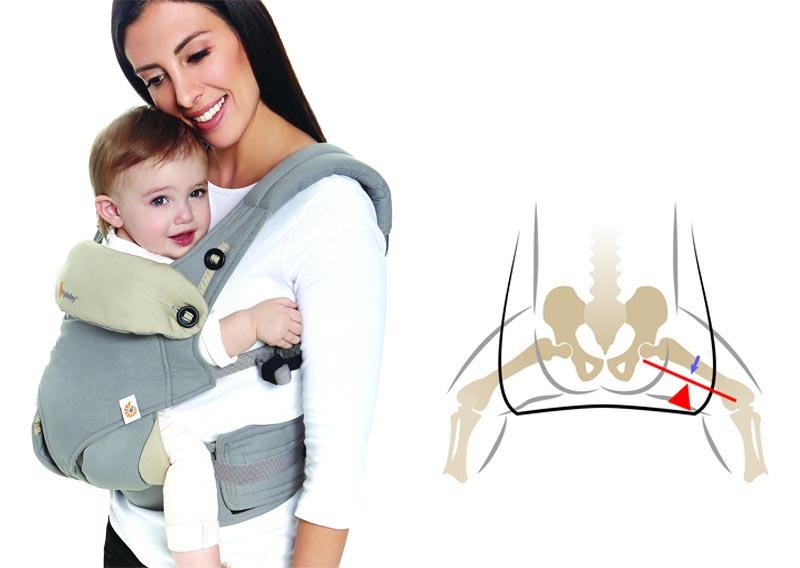 Displazia articulațiilor șoldului la copii - simptome și tratament - Rănire