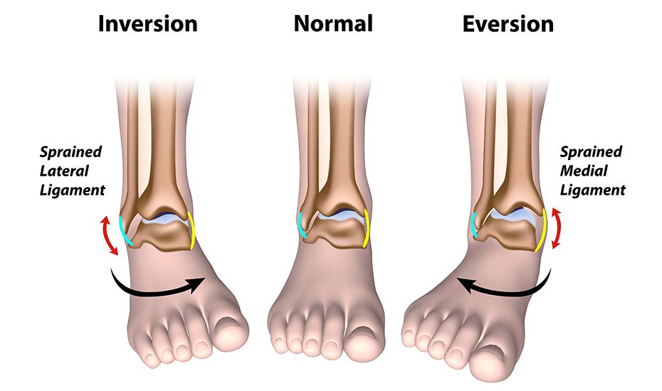 Ruperea tratamentului articulațiilor ligamentelor gleznei