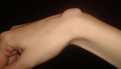 inflamația articulației încheieturii)
