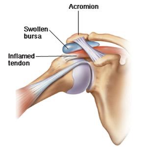 inflamația tendonului în articulația umărului simptomele bolii articulațiilor picioarelor