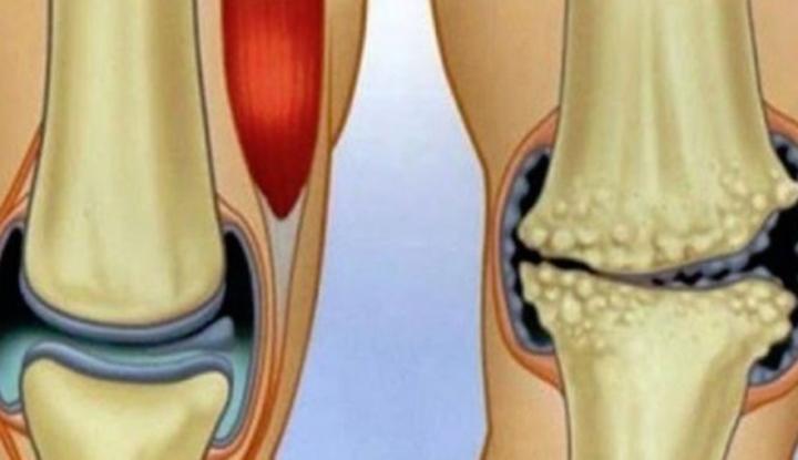 leac pentru dureri la genunchi și articulații