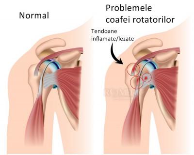 leziunea tendonului mușchiului supraspinat al tratamentului articulațiilor umărului)