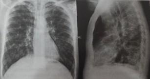 Fibroza pulmonară și Colagenozele pe radiografia toracică | Proceduri medicale