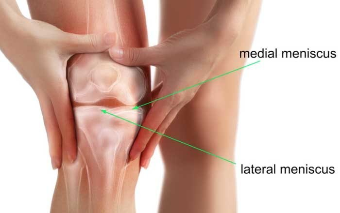 meniscul tratamentului simptomelor genunchiului