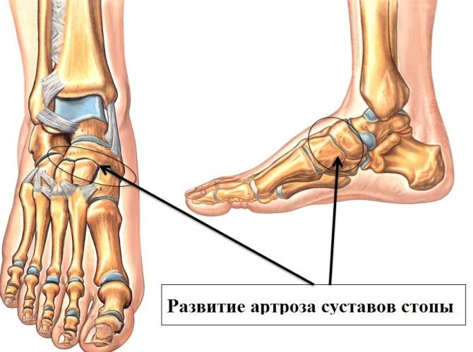 nume de boli ale articulațiilor picioarelor)
