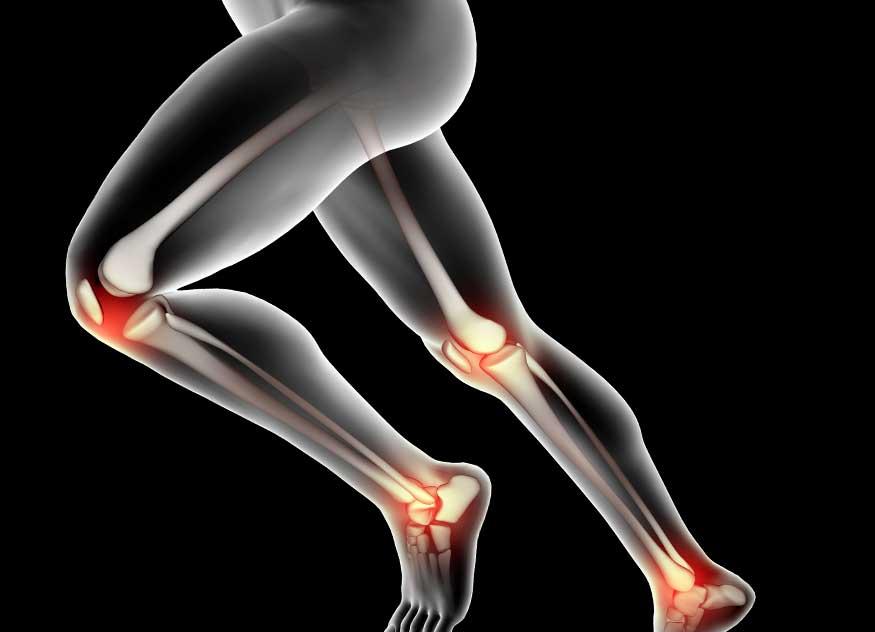 Poate răni articulațiile din nervi, Afecțiuni - Recomandări - Aliphia