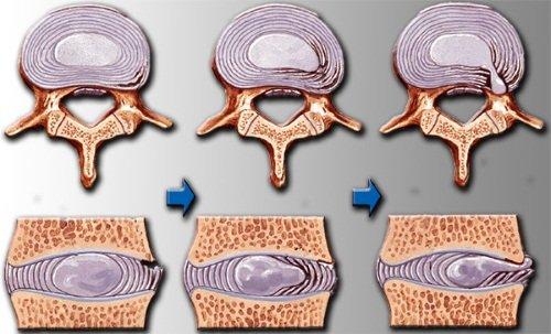 preparate pentru ameliorarea inflamației în osteochondroză)
