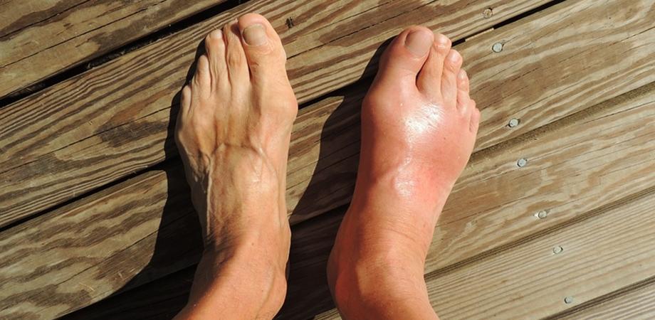 Gută - artrita gutoasă: cauze, simptome și tratament! - Medic Chat