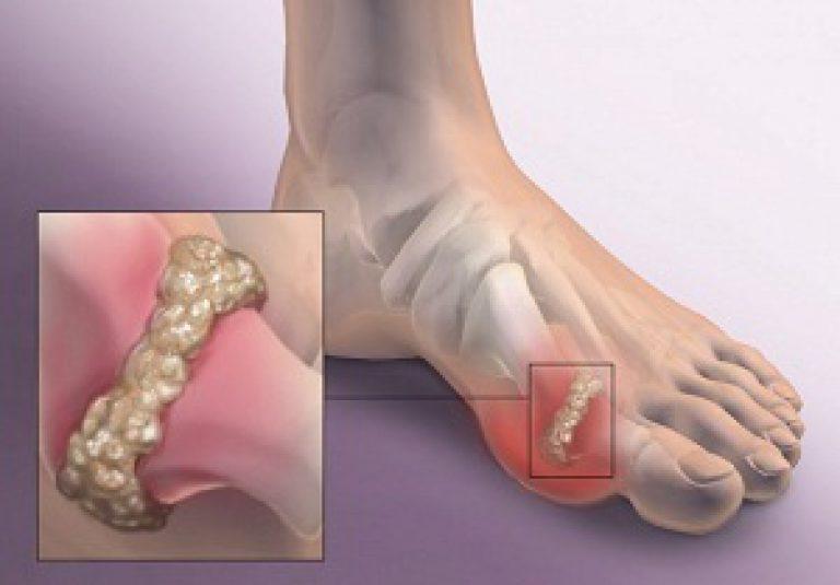 dureri articulare slăbiciune generală articulațiile rănesc stricate