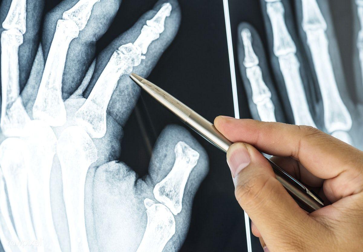 Tratamentul articulațiilor CT)