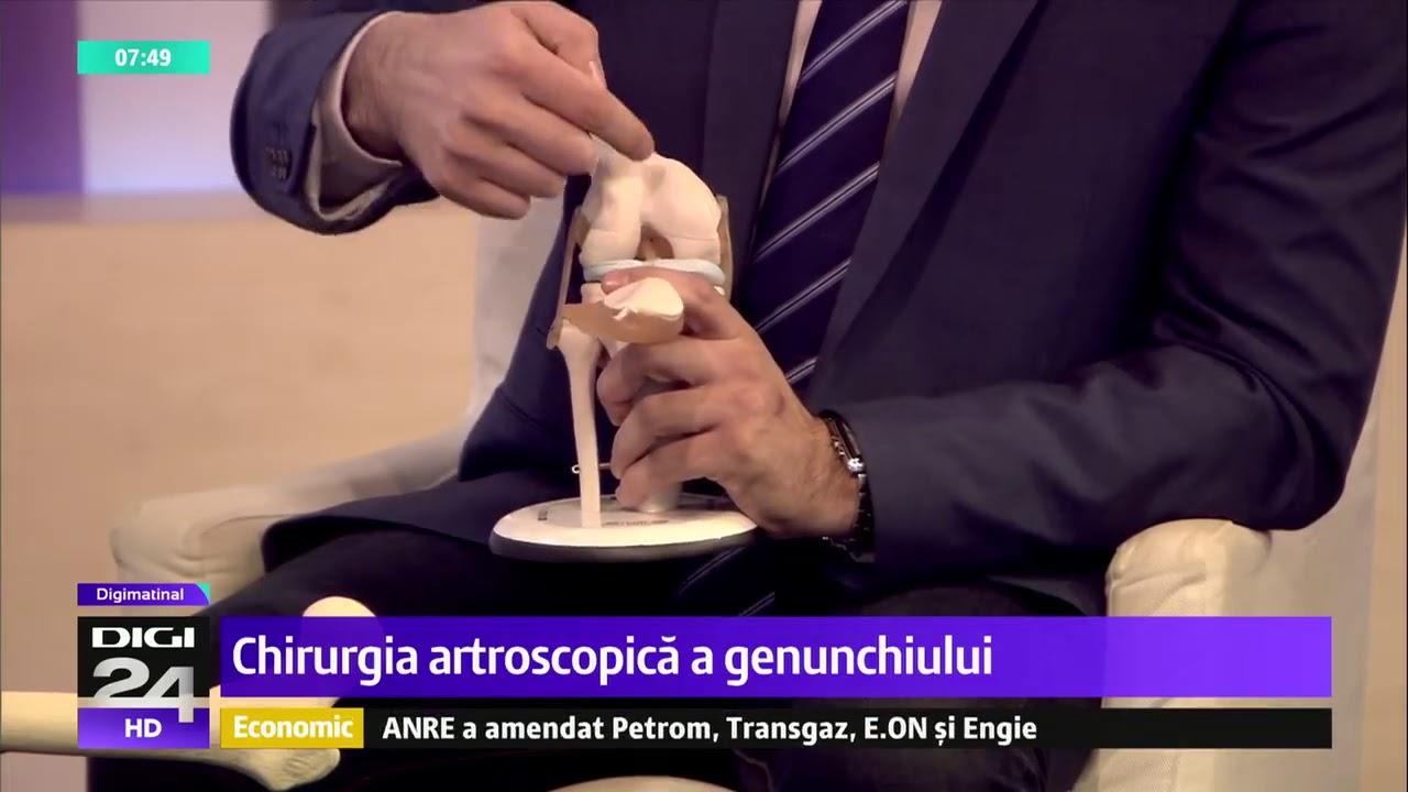 meniu de probă pentru artroza genunchiului îndepărtați crizele și durerea din articulații