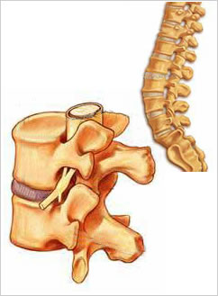 tratamentul coloanei vertebrale și articulare la ramensky)