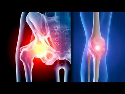 Tratamentul KVH-terapiei artrozei