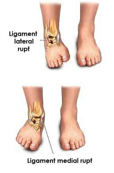 Tratamentul ligamentelor gleznei deteriorate, Ruptura de ligamente