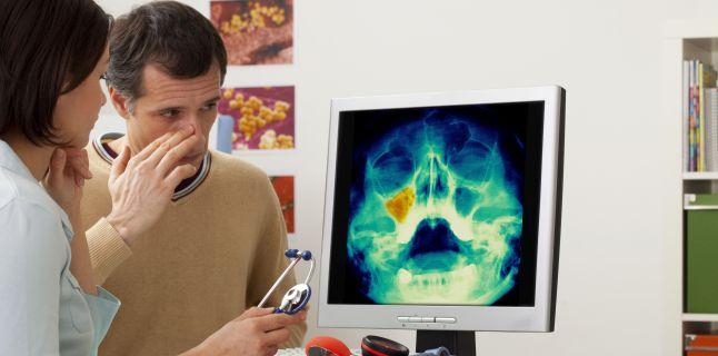 Cauzele si tratamentul sinuzitei acute