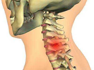 Denumirea unguentelor pentru osteochondroza coloanei vertebrale cervicale